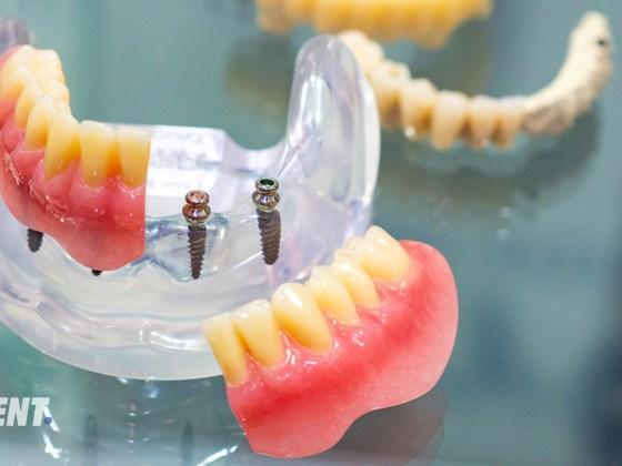 Mini implants