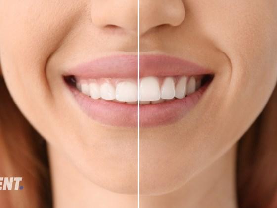 Reshaping teeth