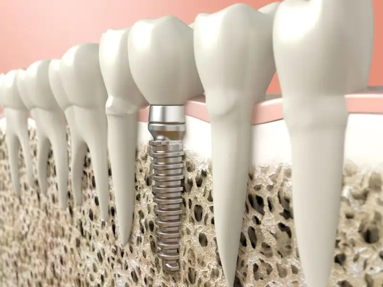 Cross-sectional illustration of a dental implant in the jaw
