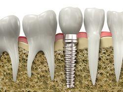 Dentist in Irving TX