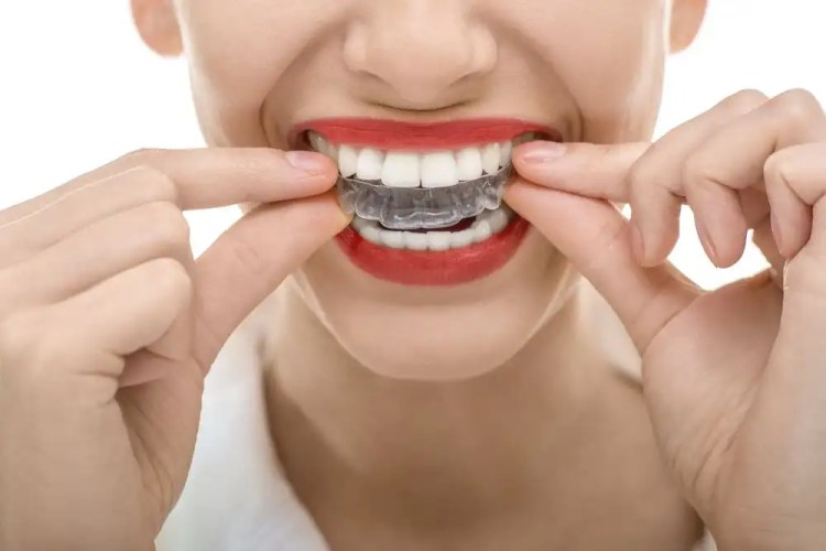 Woman with dark red lipstick fitting clear aligner over her teeth