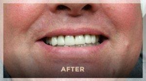 Irving TX Dentist