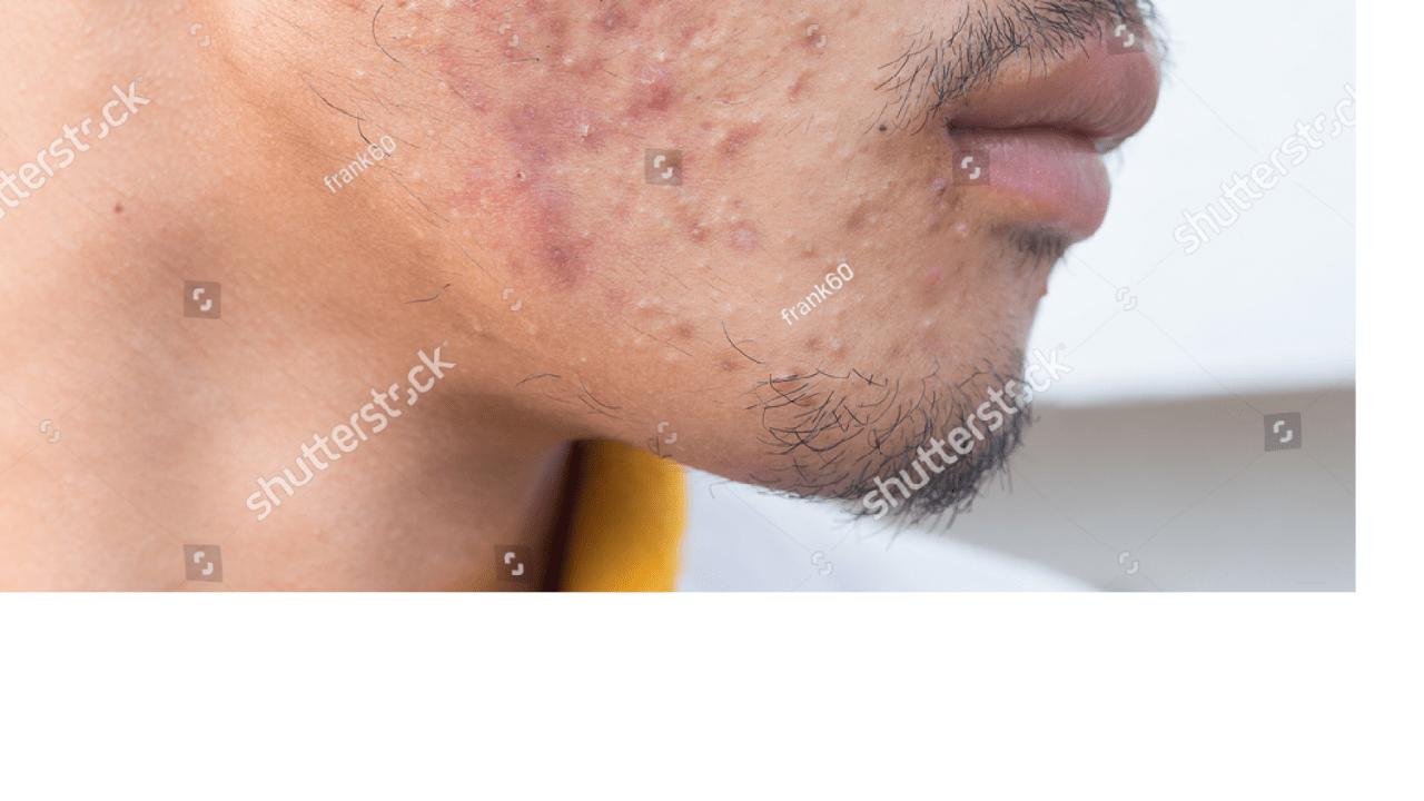 男の乾燥肌で市販の化粧水でできた画像