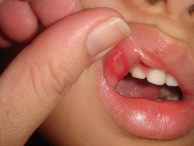 تقرحات الفم عند الاطفال