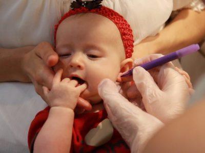 نصائح مهمة قبل تركيب الحلق للاطفال