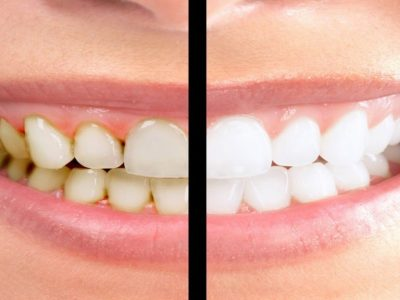 اسباب اصفرار الاسنان عند الاطفال