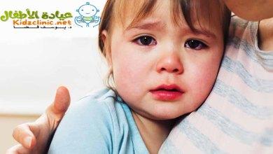 Photo of علاج احتقان الانف عند الاطفال الرضع