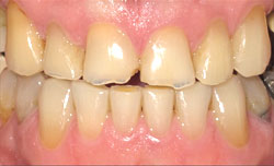 Dental Success Story 2 - Before