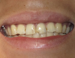 Dental Success Story 3 - Before