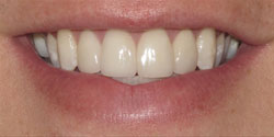 Dental Success Story 1 - After