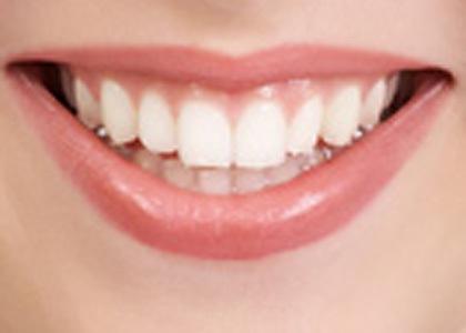 دراسة: انقطاع الطمث يؤثر على صحة الأسنان