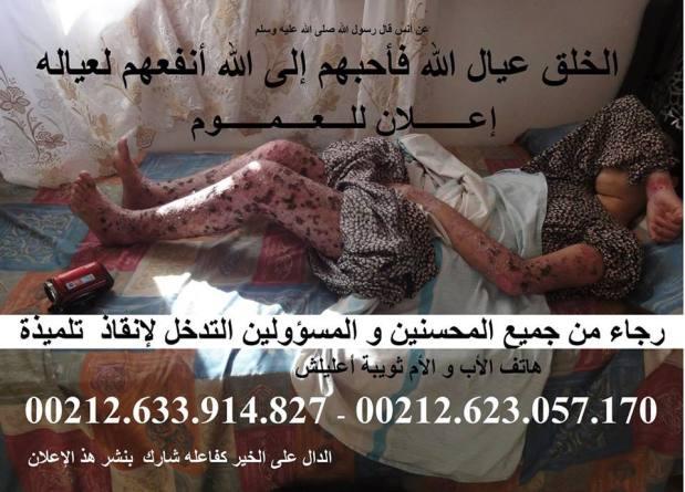 رسالة إلى وزير الصحة.. طفلة مصابة بمرض نادر تطلب تدخل الوردي