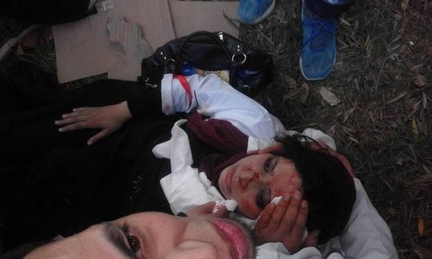 بعد التدخل الأمني ضد الأساتذة.. 500 جريح وحالات شلل نصفي وفقدان ذاكرة