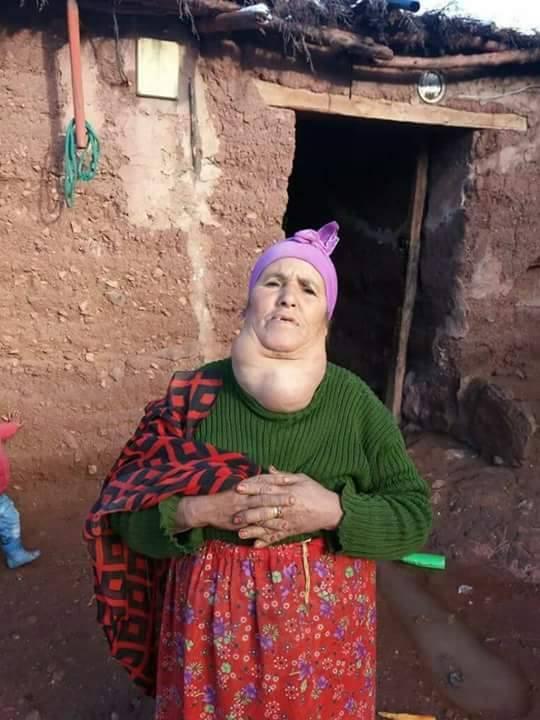 حالة إنسانية.. عائشة تنتظر العلاج