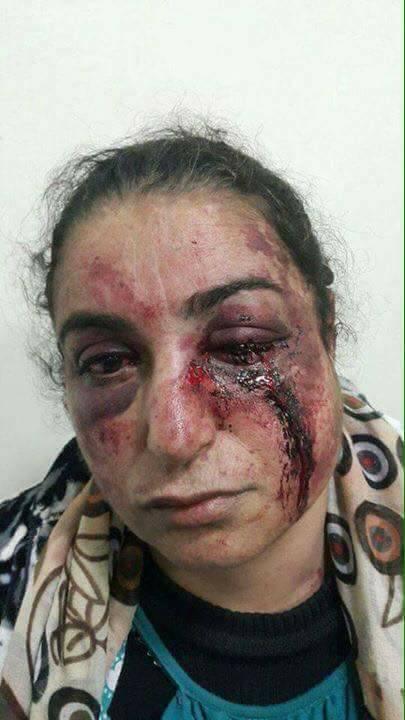 بسبب رفضها التعدد.. فاطنة تتعرض للضرب والرفس من قبل زوجها (صور صادمة)