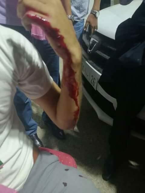 بالصور من مؤتمر حزب الاستقلال.. دماء في معركة الطباسل!