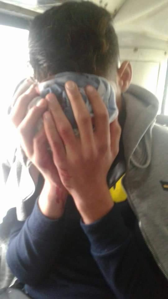 بالصور من القنيطرة.. إصابة طفل من طرف مجهول رشق حافلة بالحجارة