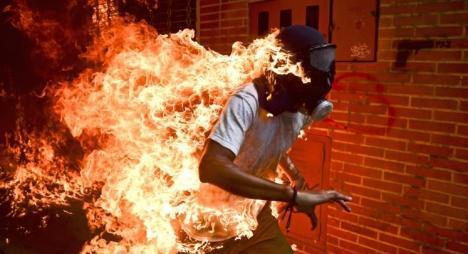 """لقطة احتراق محتج.. """"أزمة فنزويلا"""" تفوز بجائزة أفضل صورة صحافية"""