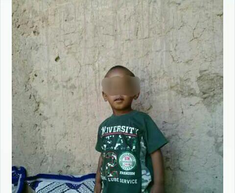 كلاب مسعورة نهشت جسده.. صدمة في زاكورة بعد وفاة الطفل عدنان
