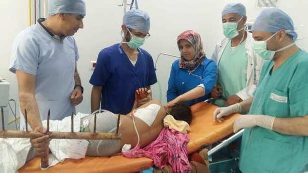بالصور من أزرو.. تدخل جراحي ينقذ حياة طفلة انغرزت في صدرها قطع حديدية