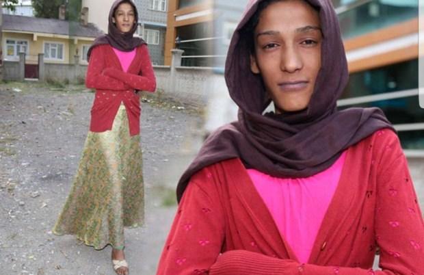 بالصور.. فتاة تركية تعاني بسبب طولها!