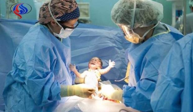 دراسة: ارتفاع حالات الولادة القيصرية مثير للقلق