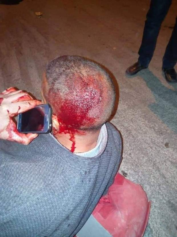 إصابة أمنيين/ لا اعتقالات/ إصابة محتج في الرأس.. حصيلة تفريق اعتصامات الأساتذة المتعاقدين