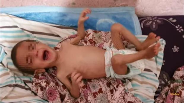 حالة إنسانية.. طفل يعاني من سوء في التغذية يحتاج لعملية جراحية (صور)