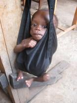 Child Nutrition: Rehabilitation at KIHEFO's Nutrition Centre