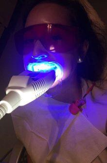 Killer Fashion PD Dental Teeth Whitening Review