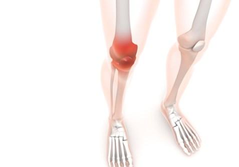 オスグッドシュラッター病 オスグット病 子供 膝の痛み スポーツ障害