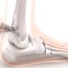 Jones骨折・第5中足骨疲労骨折の原因と対処法