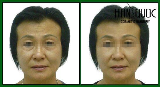 sau khi căn da mặt thì làn da tươi trẻ đấy sức sống và trẻ hơn rất nhiều