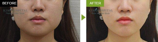 Sau khi cắt góc hàm tại Kim Hospital: khuôn mặt thon gọn mềm mại hơn