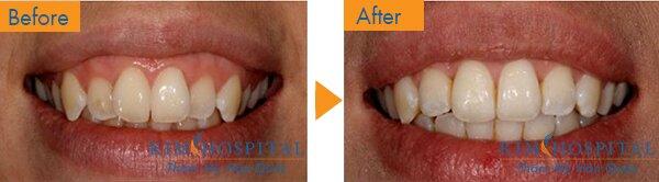Trước khi phẫu thuật: Khách hàng có hàm răng cũng như lợi bị hở khi cười, nhưng chỉ cần một lần phẫu thuật cười hở lợi là khách hàng đã có được một nụ cười tự nhiên với khuôn hàm răng không bị hở lợi