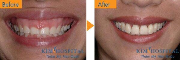 Trước khi phẫu thuật: Khách hàng có bộ răng nhỏ nên khi cười lợi trên hở nhiều làm mất thẩ mỹ của khuôn mặt. Nhưng sau khi thực hiện ca phẫu thuật kết hợp bọc răng kéo dải răng với phẫu thuật hở lợi, khách hàng đã có được hàm răng đều đặn, cùng nụ cười tỏa nắng