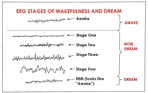 EEG Stages of wakefulness and sleep