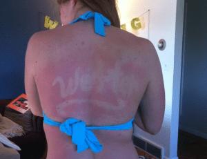 My Sweet Back Burn
