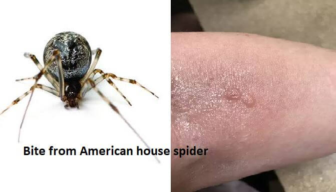 american house spider ( common house spider )