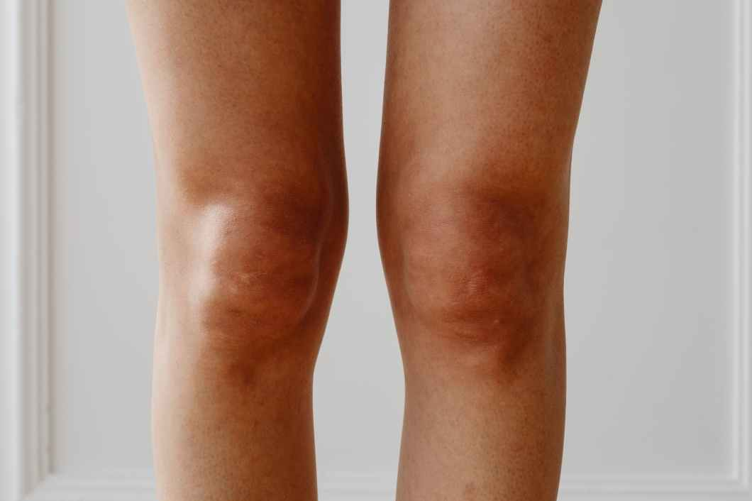 How to regenerate knee cartilage naturally with food