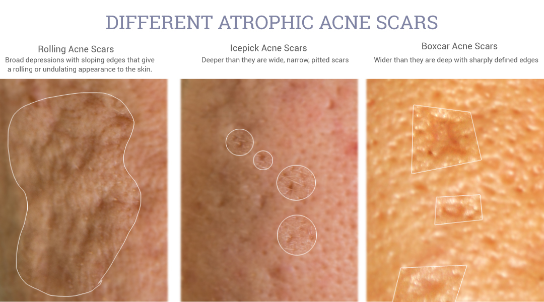 Adapalene 0 3 May Help Improve The Appearance Of Atrophic Acne Scars Kindofstephen