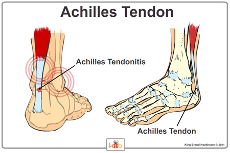 Image result for achilles tendonitis