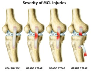 MCL Sprain Options