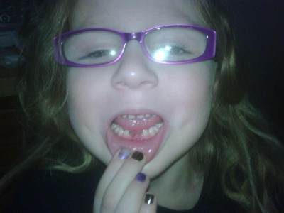 Kylie's Second Lost Tooth