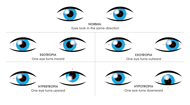 12 Step Comprehensive Digital Eye Exam