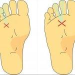 足の裏が痛い モートン病か?