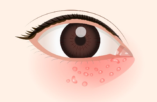 目の周りの水泡