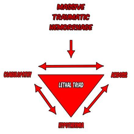 Damage Control Resuscitation. The Lethal Triad.