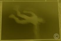 Chez le docteur - Envol décomposé [15x 22cm]