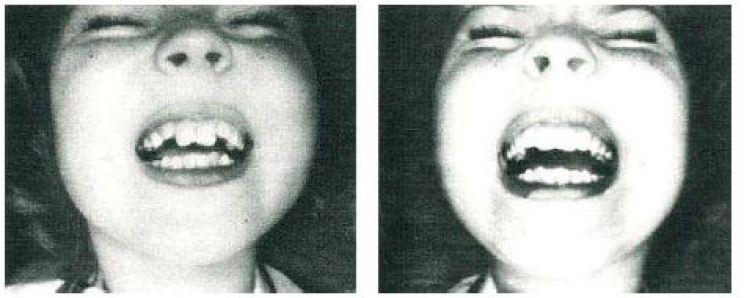 Shirley Temple - hollywoodzki uśmiech przedipozabiegu udoktora Pincusa.